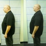 Before-After-ABC-Chiropractic-Nyack-1