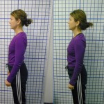 Before-After-ABC-Chiropractic-Nyack-10