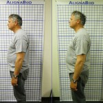 Before-After-ABC-Chiropractic-Nyack-3