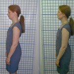 Before-After-ABC-Chiropractic-Nyack-4