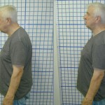 Before-After-ABC-Chiropractic-Nyack-5