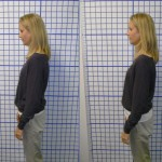 Before-After-ABC-Chiropractic-Nyack-6