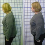 Before-After-ABC-Chiropractic-Nyack-7