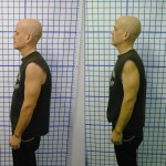 Before-After-ABC-Chiropractic-Nyack-8