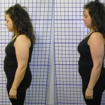 Before-After-ABC-Chiropractic-Nyack-9